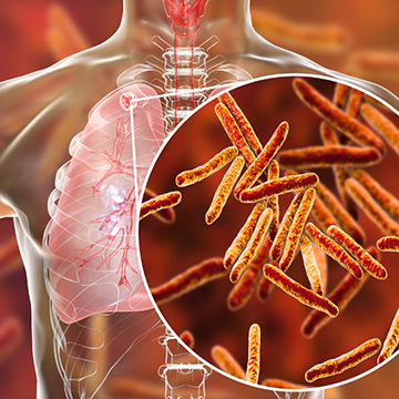 Study: Cough That Spreads Tuberculosis Has Pain-Linked Trigger
